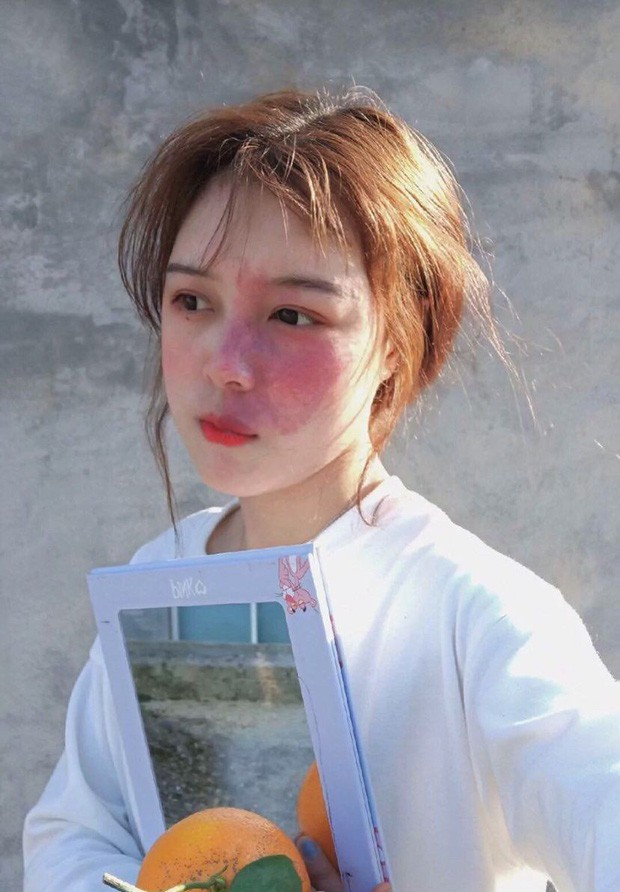 Hot girl với vết chàm lớn trên mặt trở thành mẫu lookbook nổi tiếng: Con gái xinh nhất khi tự tin là chính mình! - Ảnh 1.