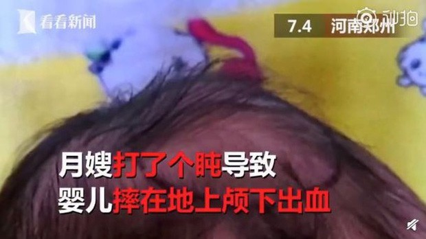 Cẩn thận thuê y tá về chăm sóc con sơ sinh, trong giây lát bố mẹ ngất lịm khi thấy cái đầu méo xệch của đứa con mới 2 ngày tuổi - Ảnh 1.