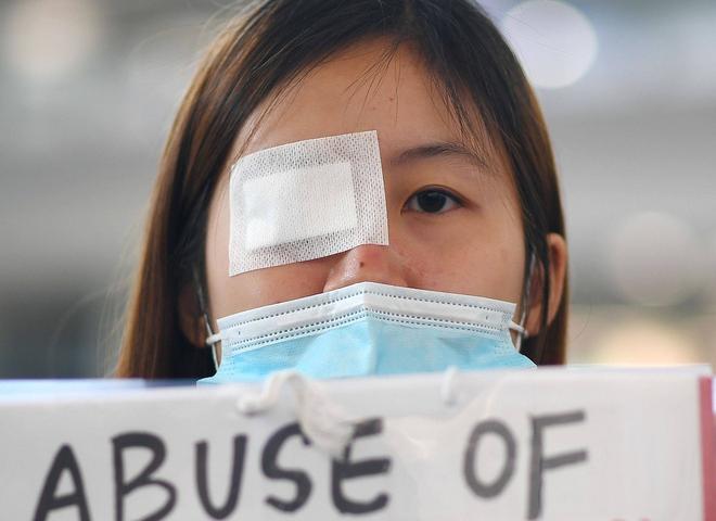 Tê liệt vì biểu tình, Hong Kong hủy tất cả các chuyến bay, TQ nói có dấu hiệu khủng bố - Ảnh 3.
