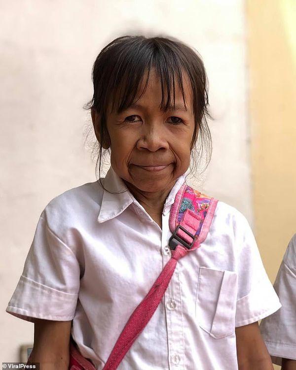 Mắc bệnh lạ, bé gái 10 tuổi có khuôn mặt như cụ bà 60 - Ảnh 1.