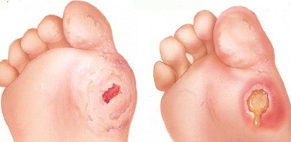7 cách chăm sóc vết thương chân ở người bệnh tiểu đường - Ảnh 1.