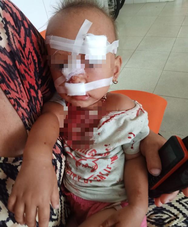 Mẹ bé gái bị cha ruột ném ly vào mặt, khâu 12 mũi: Lúc 13 tháng, con bé cũng bị ném vật cứng làm chấn thương sọ não - Ảnh 3.