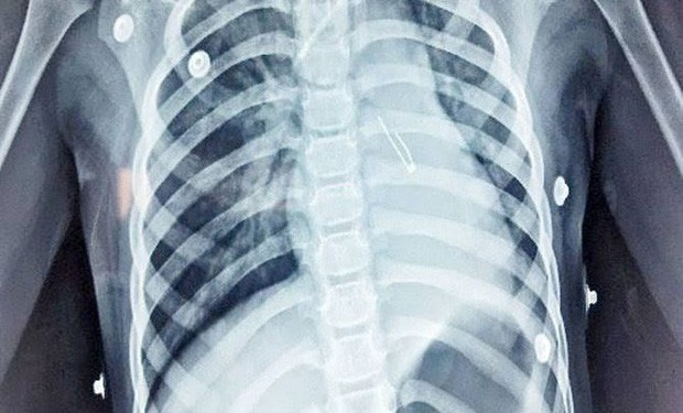 Nghe lời xúi dại thanh niên cứng phải nhập viện vì nuốt gần 4kg kim loại vào người - Ảnh 1.