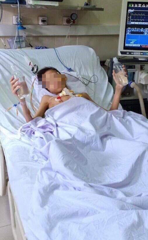 Ca ghép phổi đầu tiên ở Việt Nam: 5 tỷ đồng và 8 tháng đợi chờ dấu hiệu tiến triển - Ảnh 1.