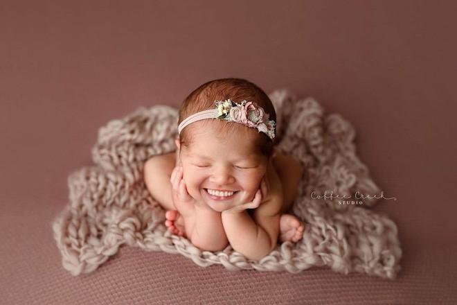 Bộ ảnh chứng minh lí do vì sao trẻ sơ sinh không nên có răng khiến ai xem cũng phải giật mình thon thót - Ảnh 15.