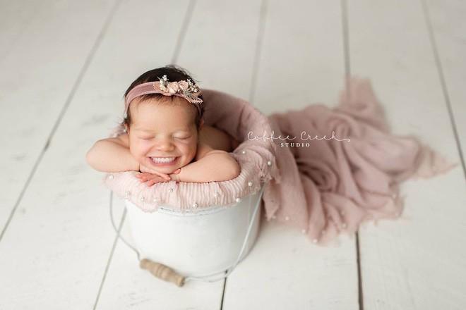 Bộ ảnh chứng minh lí do vì sao trẻ sơ sinh không nên có răng khiến ai xem cũng phải giật mình thon thót - Ảnh 8.