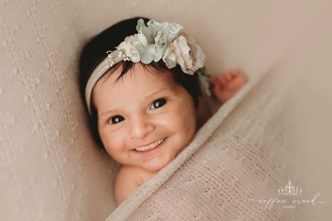 Bộ ảnh chứng minh lí do vì sao trẻ sơ sinh không nên có răng khiến ai xem cũng phải giật mình thon thót - Ảnh 9.