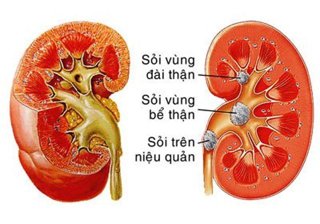 Bác sĩ thận - tiết niệu mách bạn cách đẩy lùi bệnh sỏi thận, không cần phẫu thuật - Ảnh 2.