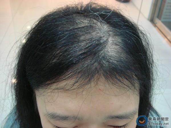 Áp lực thi cử quá lớn khiến bé gái 13 tuổi học đến hói đầu, lông mi, lông mày cũng rụng sạch - Ảnh 2.