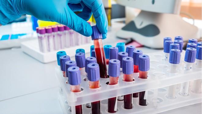 Xét nghiệm máu có thể dự đoán trước cái chết, độ chính xác tới 83% - Ảnh 1.
