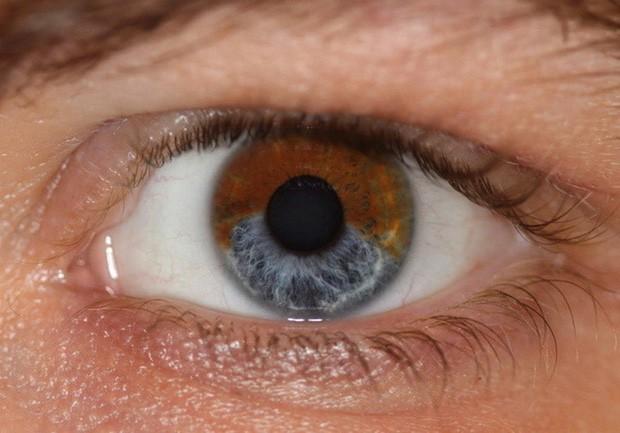 Nhiễm độc thủy ngân: Những triệu chứng bạn có thể nhận biết và cách xử lý ban đầu - Ảnh 4.