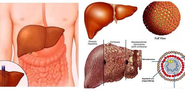 Căn bệnh ung thư tăng chóng mặt ở Việt Nam: Đây là 5 dấu hiệu cần nhớ - Ảnh 2.