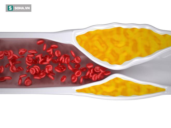BS cảnh báo 4 dấu hiệu của chứng tắc mạch máu: Cần chú ý đề phòng tử vong bất ngờ - Ảnh 5.