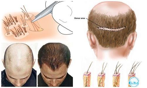 Hói đầu sớm có cách nào để chữa trị hiệu quả mà không tác dụng phụ không? - Ảnh 1.