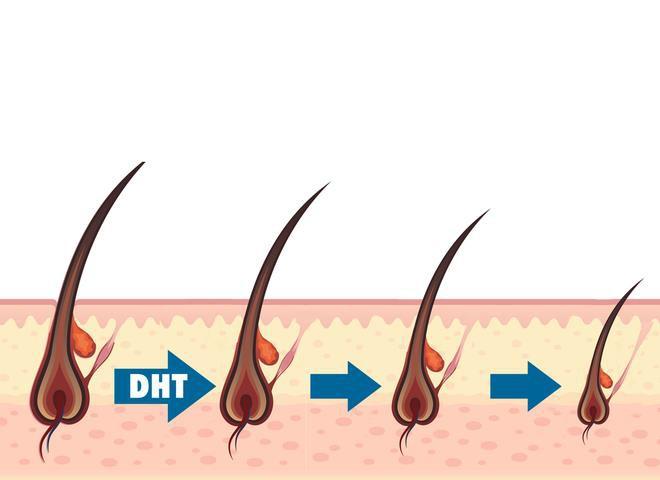 Hói đầu sớm có cách nào để chữa trị hiệu quả mà không tác dụng phụ không? - Ảnh 2.