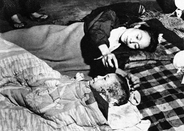 Bức ảnh chụp ngày 6/10/1945 cho thấy một người phụ nữ Nhật Bản và đứa con của cô nằm trên một tấm thảm trải trên nền đất tại bệnh viện nằm ở gần trung tâm thành phố Hiroshima bị phá hủy.