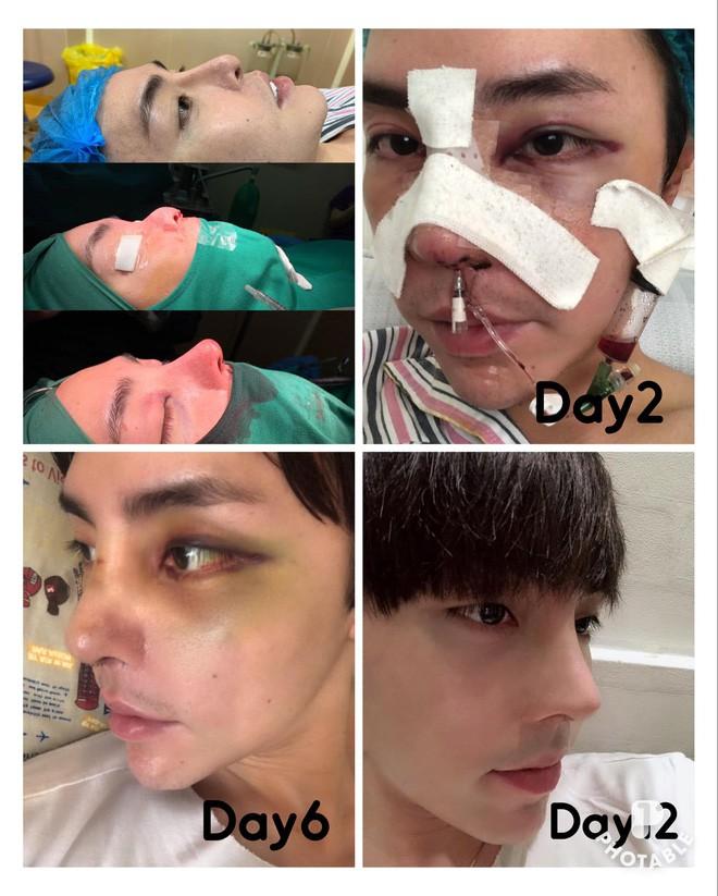10 năm trải qua vô số lần dao kéo, cậu bạn Đà Nẵng khiến dân tình kinh ngạc khi so ảnh CMND với hiện tại - ảnh 4