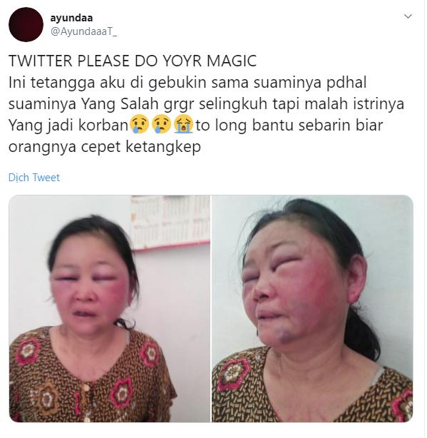 Dòng chia sẻ và hình ảnh về người phụ nữ bị chồng đánh đập.