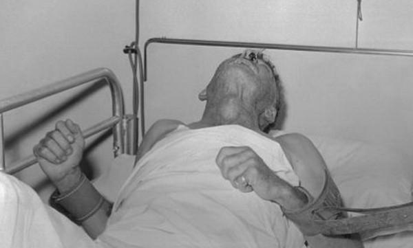 Ám ảnh bệnh nhân chào ra về để chết, BS nhắc mọi người cần ghi nhớ điều này khi bị chó cắn - Ảnh 2.