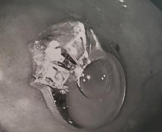 Ngủ dậy phát hiện mất nhẫn đính hôn, cô gái đi chụp X-quang mới thấy nằm ngay trong ruột và câu chuyện về giấc mơ khiến dân mạng cười nghiêng ngả - Ảnh 1.