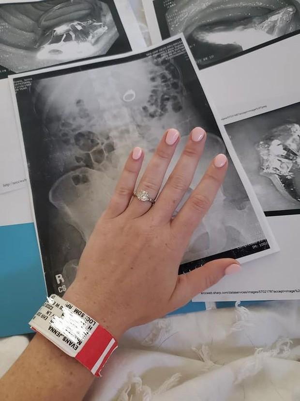 Ngủ dậy phát hiện mất nhẫn đính hôn, cô gái đi chụp X-quang mới thấy nằm ngay trong ruột và câu chuyện về giấc mơ khiến dân mạng cười nghiêng ngả - Ảnh 2.