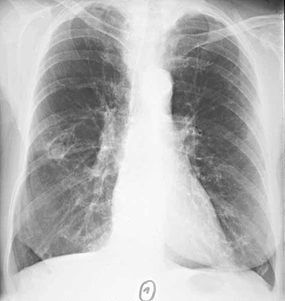 Căn bệnh khiến nam sinh phải mang bình oxy đi thi: Vì sao không thể chẩn đoán ra? - Ảnh 1.