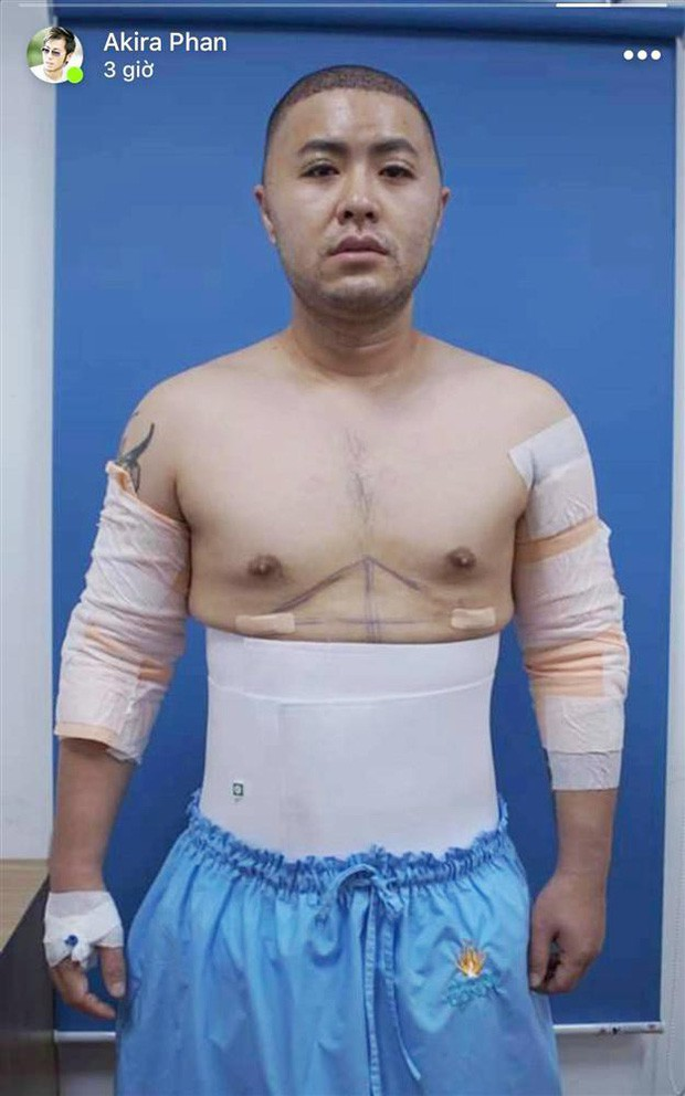 Sao Vbiz tăng cân mất kiểm soát: Nam Em béo đến mức bị nghi mang thai, nhưng chưa sốc bằng ca sĩ dao kéo để có 6 múi - Ảnh 13.