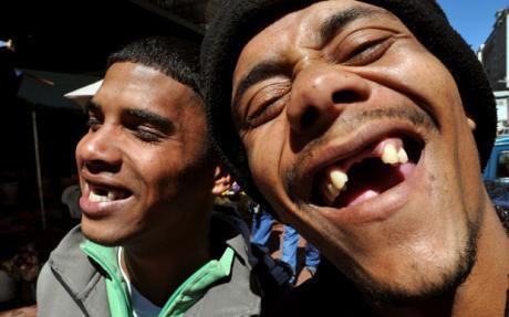 Nụ cười thiếu những chiếc răng cửa: Khoảng cách đam mê hay còn là mốt thời trang kì quặc ở Nam Phi - Ảnh 3.