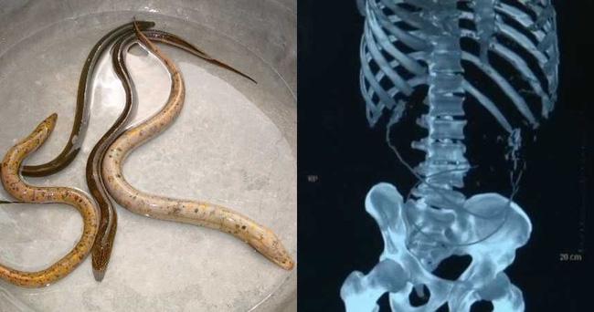 Chữa táo bón bằng mẹo dân gian nuốt lươn sống, các bác sĩ chết lặng khi thấy những cảnh tượng xảy ra trong bụng bệnh nhân - Ảnh 1.