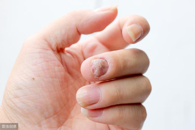 Bệnh thận không tấn công đột ngột, khi có 4 dấu hiệu này ở tay chân là bạn phải đi khám - Ảnh 2.