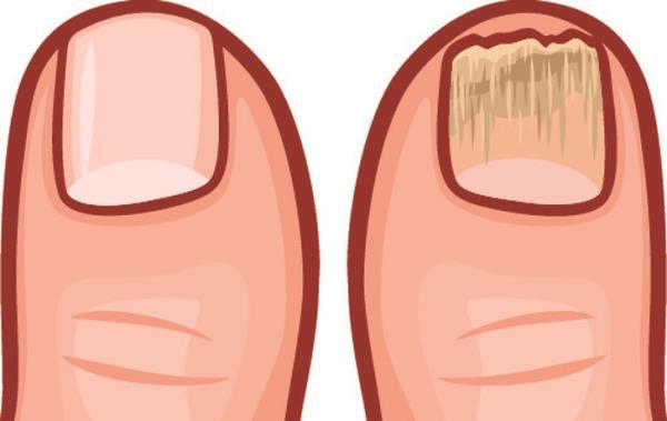 9 dấu hiệu cho thấy cơ thể bạn đang chứa nhiều độc tố - Ảnh 8.