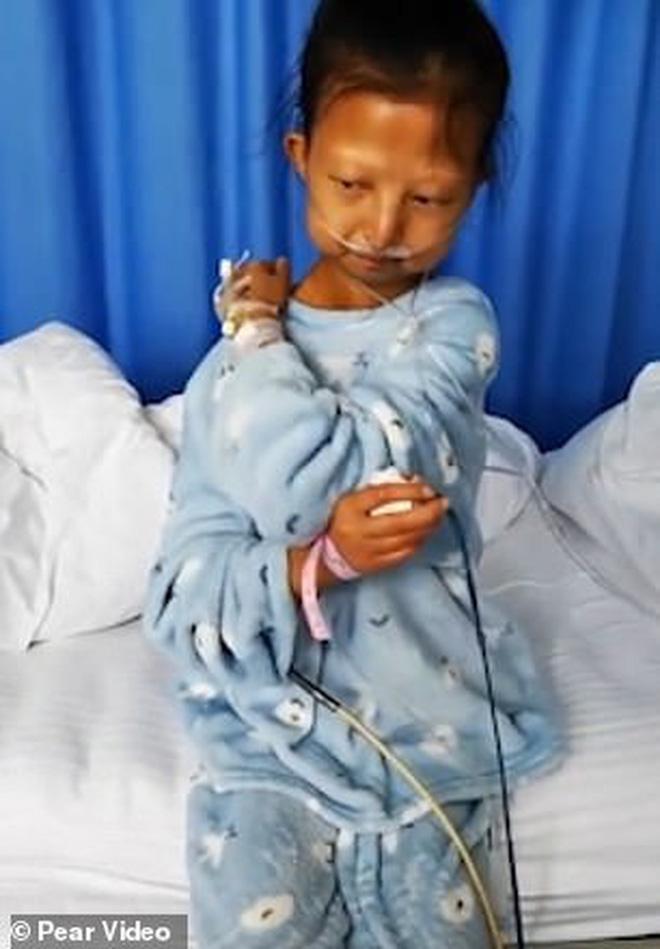Chỉ ăn cơm trắng với ớt suốt 5 năm trời để có tiền chữa bệnh cho em trai, cô gái trẻ qua đời vì bị suy dinh dưỡng trầm trọng - Ảnh 2.
