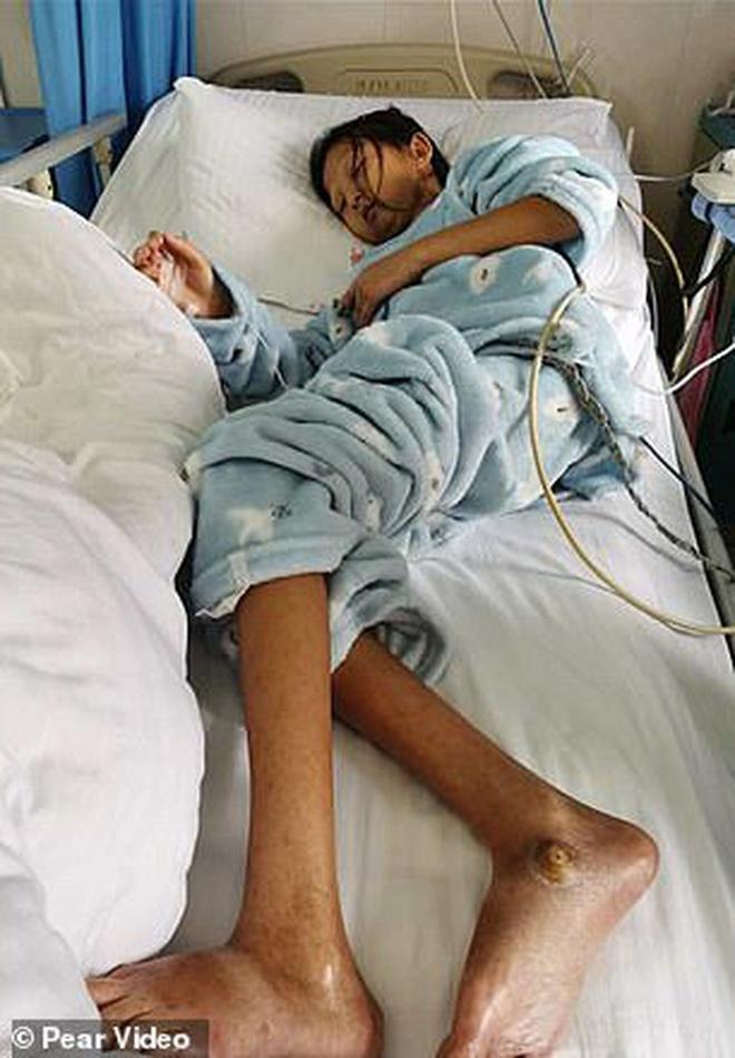 Chỉ ăn cơm trắng với ớt suốt 5 năm trời để có tiền chữa bệnh cho em trai, cô gái trẻ qua đời vì bị suy dinh dưỡng trầm trọng - Ảnh 3.