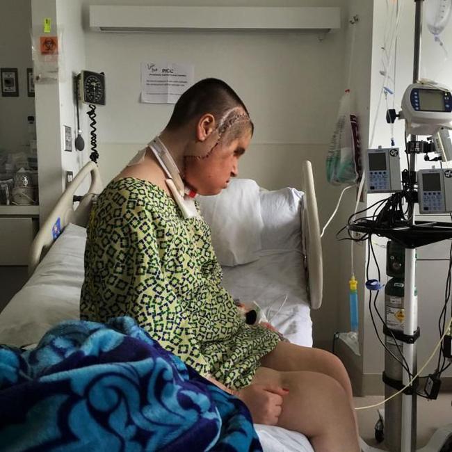 Hành trình của người phụ nữ trẻ nhất thế giới được cấy ghép khuôn mặt từ người hiến tặng và cuộc chiến với tử thần kéo dài 31 tiếng - Ảnh 5.
