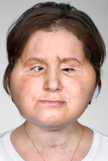 Hành trình của người phụ nữ trẻ nhất thế giới được cấy ghép khuôn mặt từ người hiến tặng và cuộc chiến với tử thần kéo dài 31 tiếng - Ảnh 8.