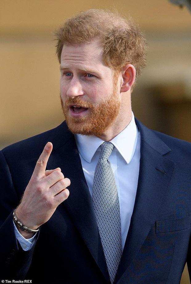 Hoàng tử Harry gây chú ý bởi mái tóc thưa thớt của mình.