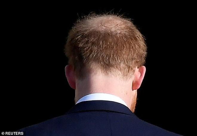 Nghiệp quật không chừa một ai: Nhiều năm trước trêu chọc anh trai thiếu tóc, Hoàng tử Harry giờ cũng đã có dấu hiệu bị hói đầu - Ảnh 3.