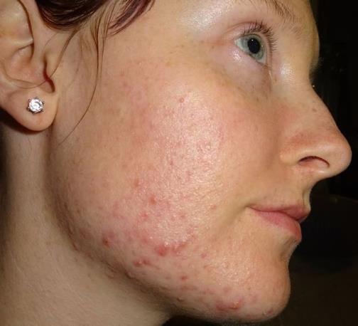 7 dấu hiệu cảnh báo sức khỏe có vấn đề mà phụ nữ thường bỏ qua - Ảnh 2.