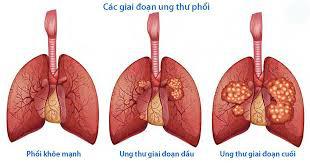 Cách kiểm tra đơn giản với ngón tay có thể tiết lộ nếu bạn bị ung thư phổi - Ảnh 2.