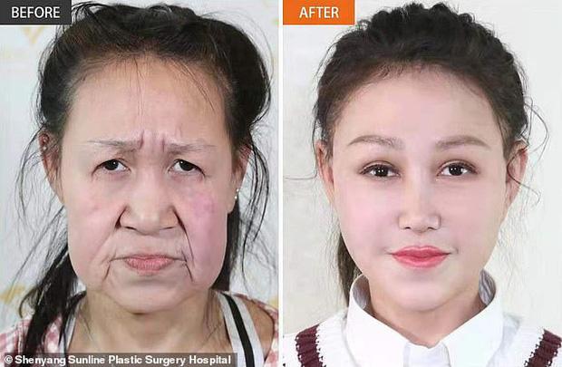 Cô gái 15 tuổi nhưng sở hữu gương mặt như cụ bà nay đã có diện mạo mới khiến ai cũng trầm trồ - Ảnh 4.