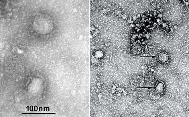 TS Nguyễn Quốc Thục Phương: 5 điểm mấu chốt về con virus khiến Trung Quốc căng như dây đàn - Ảnh 3.