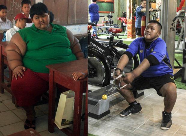 Cậu bé nặng nhất thế giới với gần 200 kg sau 4 năm phẫu thuật thu nhỏ dạ dày giờ lột xác không ai nhận ra - Ảnh 1.