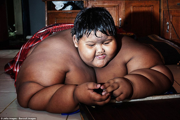 Cậu bé nặng nhất thế giới với gần 200 kg sau 4 năm phẫu thuật thu nhỏ dạ dày giờ lột xác không ai nhận ra - Ảnh 3.