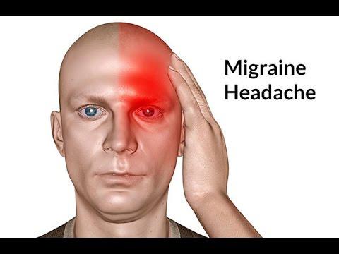 Bác sĩ cảnh báo: Đau đầu có những dấu hiệu bất thường sau cần phải đến viện gấp - Ảnh 2.