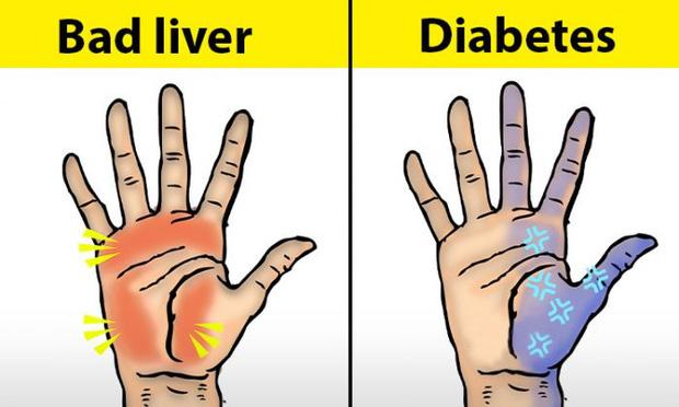 Người có chức năng gan ổn định sẽ không có 4 điểm sau trên đôi tay, cùng xem bạn có điểm nào hay không - Ảnh 1.