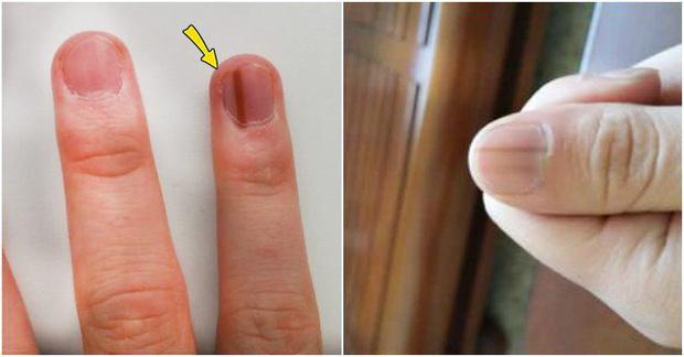 Người có chức năng gan ổn định sẽ không có 4 điểm sau trên đôi tay, cùng xem bạn có điểm nào hay không - Ảnh 2.