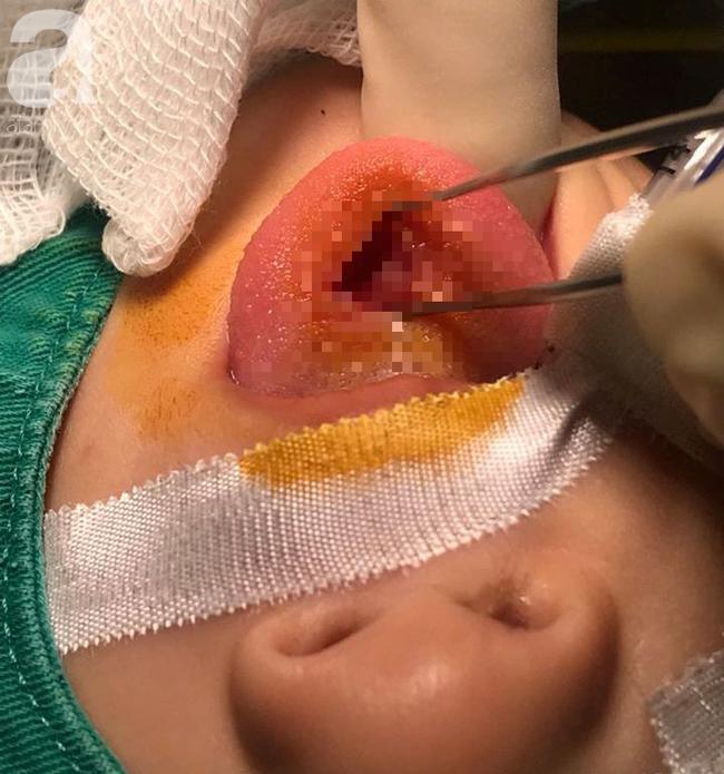 Bệnh nhân nhi vập ngã cắn thủng lưỡi, may mắn thoát nạn và lời khuyên của bác sĩ - Ảnh 1.
