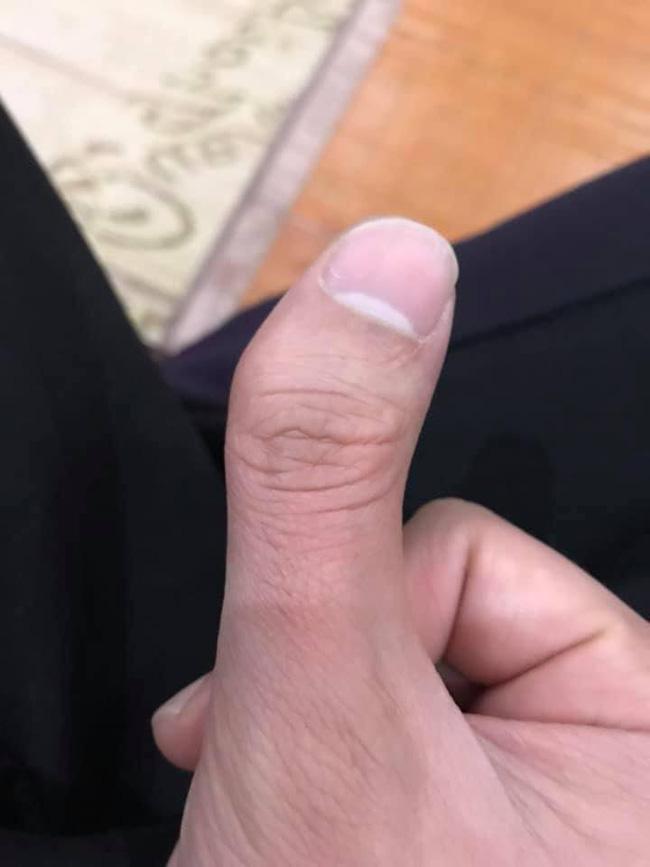 Xoắn não với cuộc thi tài lẻ của tay bạn - Trào lưu chỉ dành cho những người có ngón tay... đặc biệt - ảnh 11