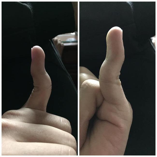 Xoắn não với cuộc thi tài lẻ của tay bạn - Trào lưu chỉ dành cho những người có ngón tay... đặc biệt - ảnh 16
