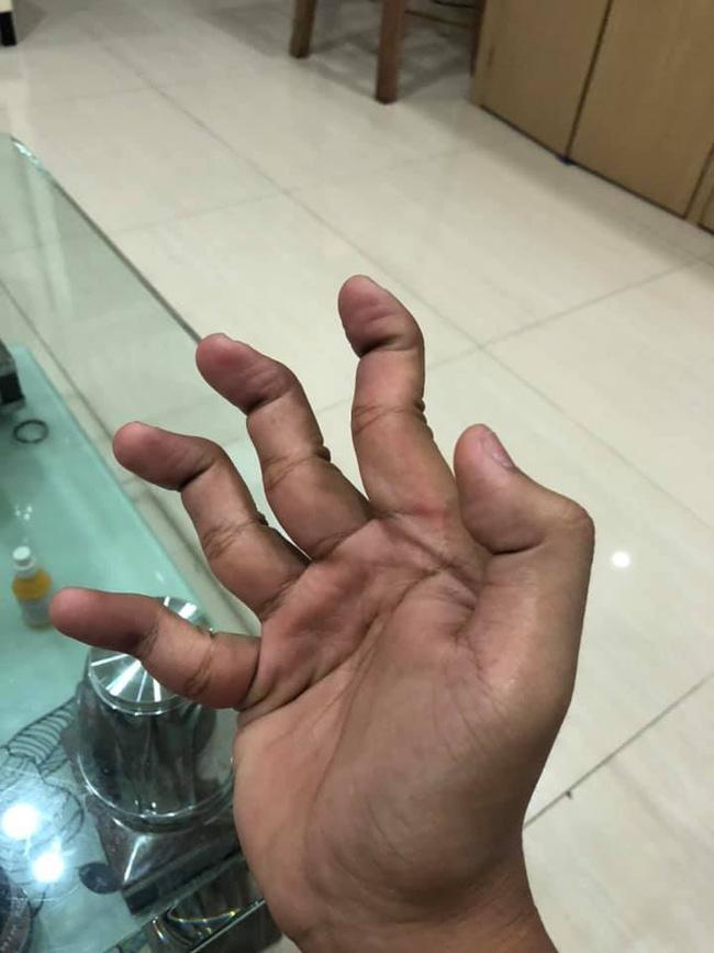 Xoắn não với cuộc thi tài lẻ của tay bạn - Trào lưu chỉ dành cho những người có ngón tay... đặc biệt - ảnh 18